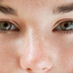 Правильный уход за проблемной кожей